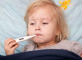 Осложнения после кори у детей