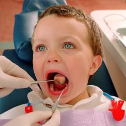 Види стоматитів у дітей