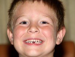 Зуби у дітей. Вибитий зуб