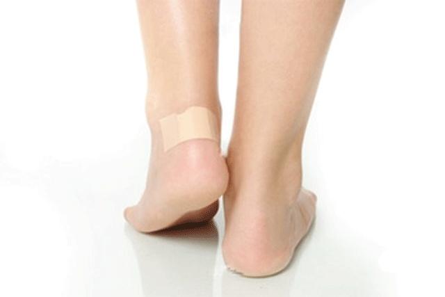 Мозолі на ногах. Водяні мозолі проколювання голкою і лікування